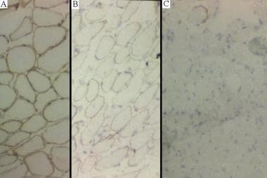 (A) Normal dystrophin staining.(B) Intermediate dy