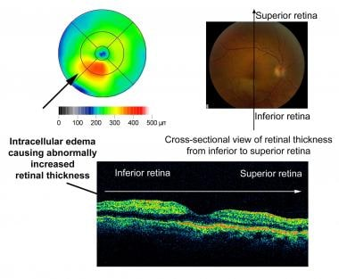 Optical coherence tomography (OCT) of right eye wi