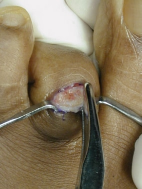 Claw toe. Feather the edges of the proximal phalan