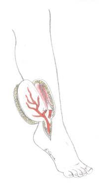 Perforator flap from the peroneal artery.