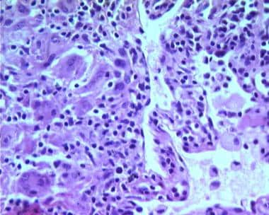 Giant cells are a characteristic feature of hypers