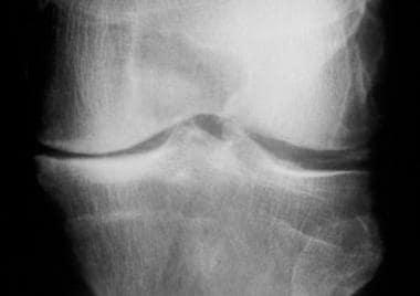 Calcium pyrophosphate deposition disease. Radiogra