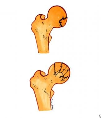 Femoral head fractures. Top diagram is a single-fr