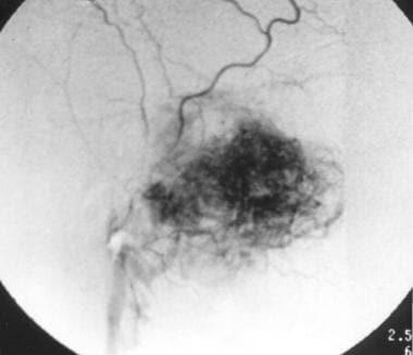 Angiogram depicting angiofibroma before embolizati