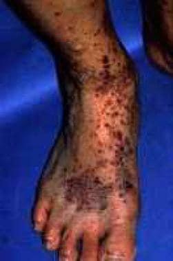 Older lesions of Henoch-Schönlein purpura demonstr