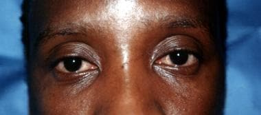 Bulbar conjunctiva congestion in a patient with mu