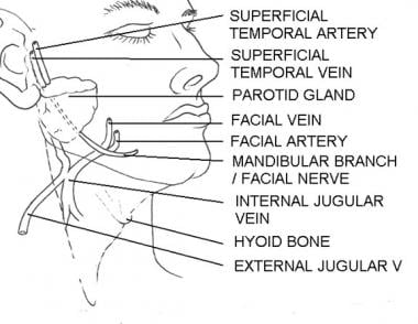 Course of the marginal mandibular nerve. Illustrat