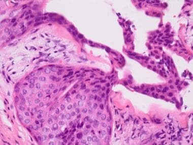Note the unusual invaginating, nodular epithelial