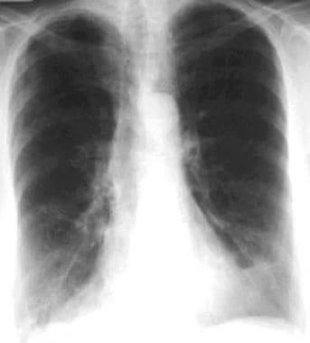 This posteroanterior chest radiograph shows hyperi