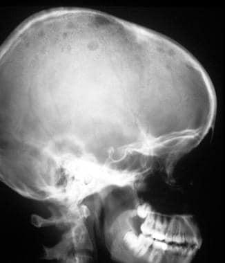 von Hippel-Lindau syndrome. A 16-year-old female a