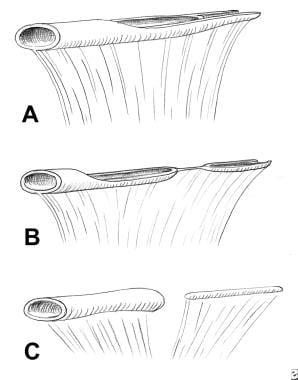 Types of duodenal recanalization anomalies. Dilata