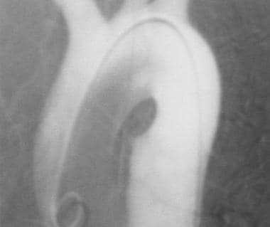 Aorta, trauma. Left anterior oblique (20°) angiogr