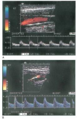 A. Arterial flow (red) is displayed in internal ca