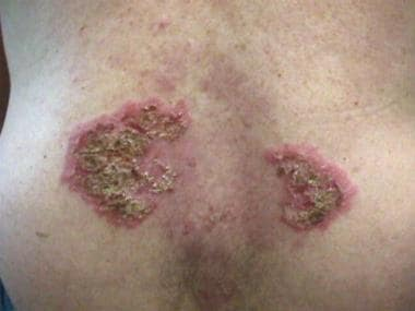 Lumbar back with erythematous plaques with impetig