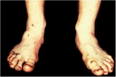 Lower extremity cutaneous lesions described in blu