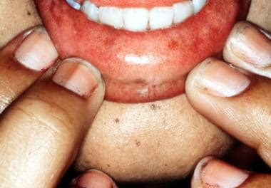 Pigmented patches of mucous membrane and pigmented