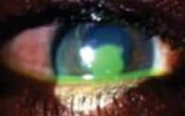 Large corneal abrasion.