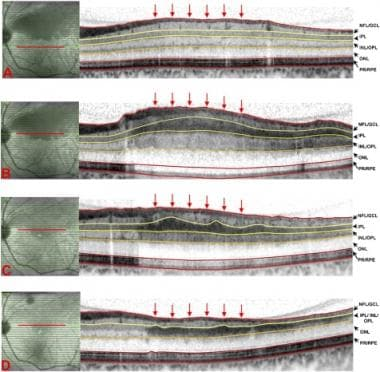 Optical coherence tomography (OCT) over time of a