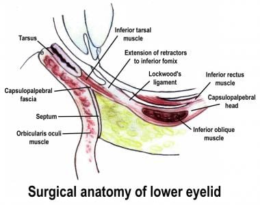 Lower eyelid anatomy.
