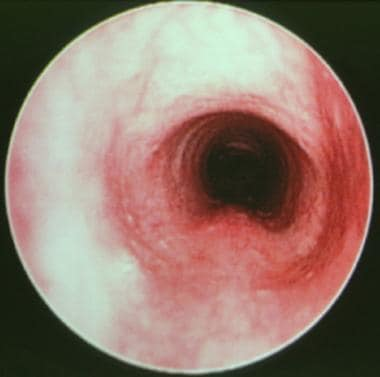 Intraoperative endoscopic view of a normal subglot