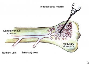 Venous drainage of bone marrow. Venous network of