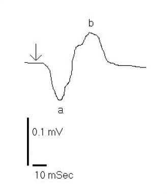 Birdshot retinochoroidopathy electroretinogram res
