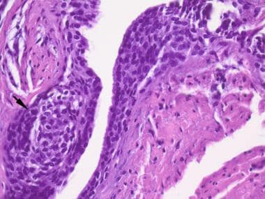 Typical luminal excrescence in the epithelium lini