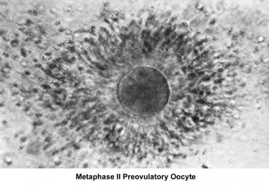 Infertility. Metaphase II preovulatory oocyte. Ima