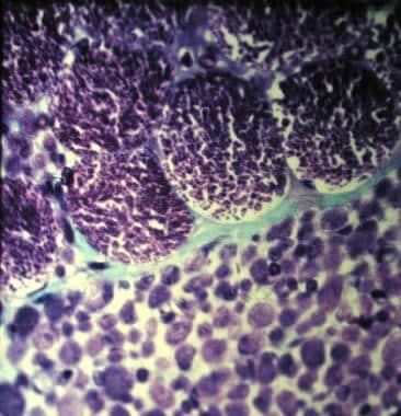 Werdnig-Hoffman disease (type of spinal muscular a
