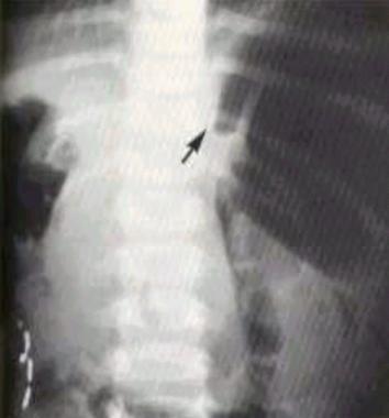 Supine abdominal image shows a mesenteroaxial volv