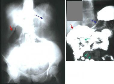Plain abdominal radiograph shows a gas-filled, dil