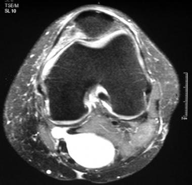 Axial, T2-weighted magnetic resonance image with f