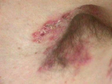 Left axilla with tender erythematous plaques.