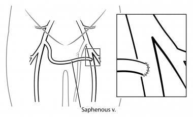 venous insufficiency treatment & management: approach, Cephalic Vein
