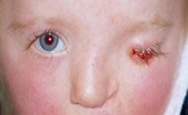 Anophthalmic socket (left eye).