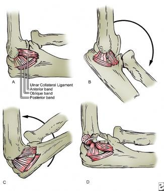 Attachment of medial collateral ligament component
