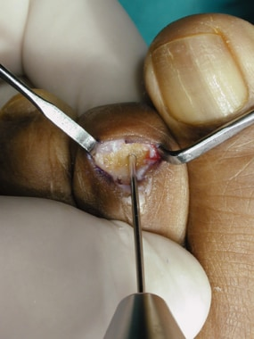 Claw toe. Drill the pin retrograde from the middle