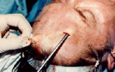 Intraoperative photograph, endoscopic brow lift su