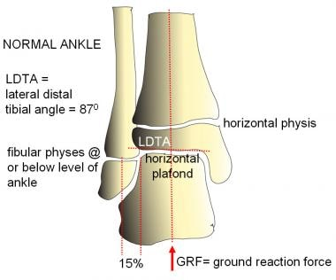 Normal ankle alignment. The lateral distal tibial