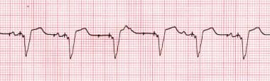 Loss of atrial capture. Rhythm strip showing inter