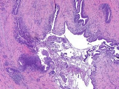 Periductal lymphocytic and plasma cell infiltrate