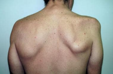 The patient is a 43-year-old farmer, shown 6 month