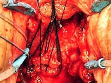 Supratrigonal vesicovaginal fistula. A J-shaped in