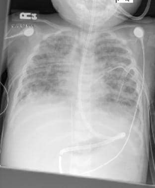 Chest radiograph demonstrates complication of acut