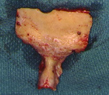 A typical subcranial bone flap.