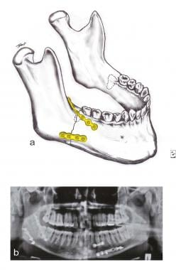 A transverse fracture of the mandible angle withou