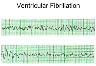 Ventricular fibrillation with polymorphic morpholo