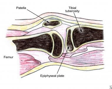 Lower-extremity anatomy for intraosseous vascular