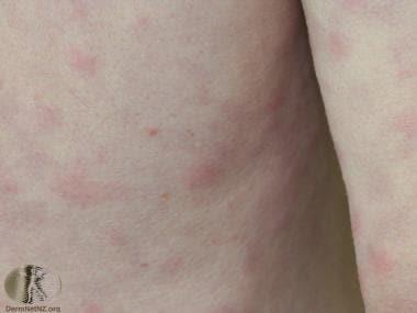Rash of Schnitzler syndrome. Courtesy of DermNet N