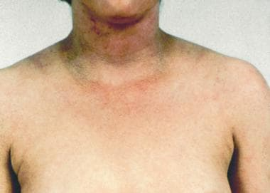 Dirty neck sign in chronic atopic dermatitis.